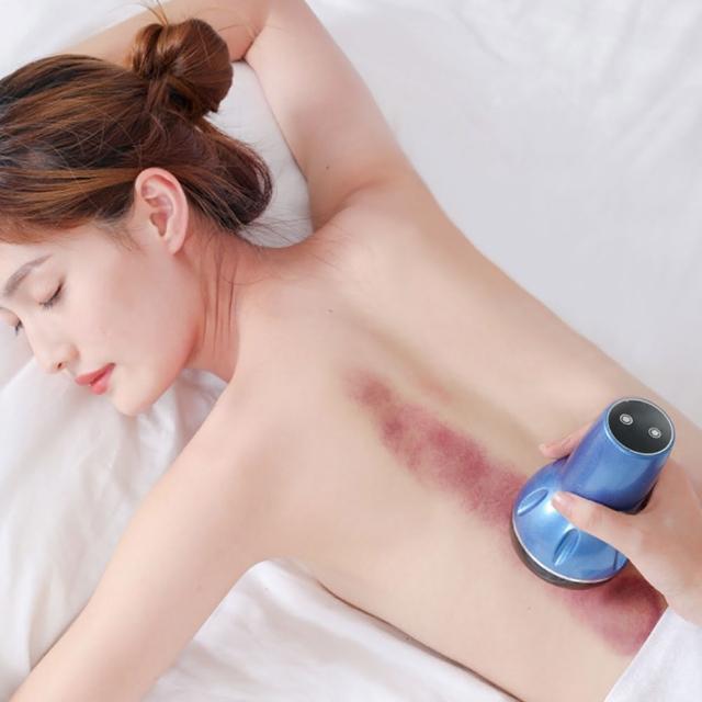【FJ】多功能USB電動刮痧按摩拔罐器CP5(紓壓必備)